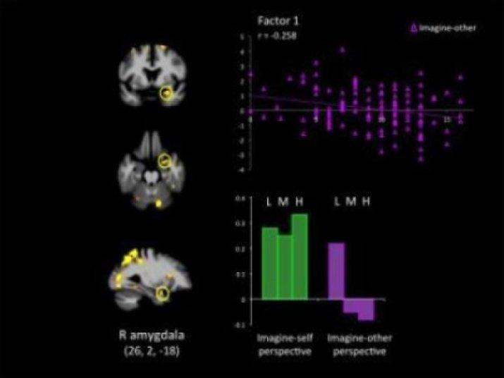 Gehirnscan bei Psychopathen